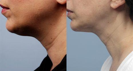 Диффузный остеохондроз шея